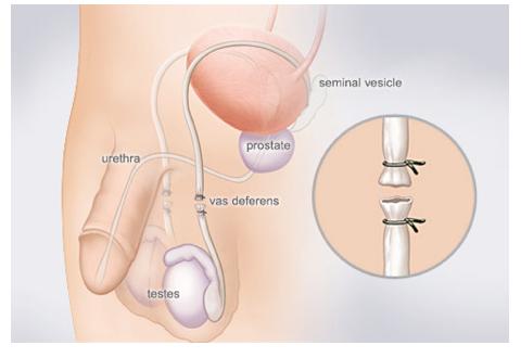 Miehen Sterilisaatio
